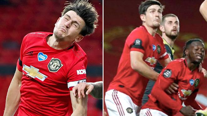 MU, Maguire, Man United, ngoại hạng Anh, truc tiep bong da hôm nay, trực tiếp bóng đá, truc tiep bong da, lich thi dau bong da hôm nay, bong da hom nay, bóng đá, bong da